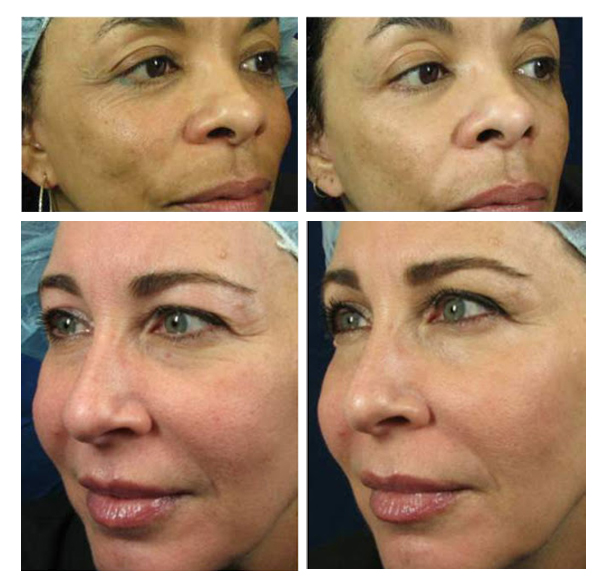 ublative, Sublative treatment, sublative treatment before and after